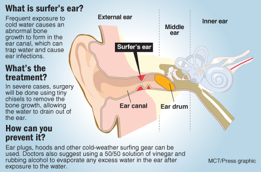Hearing loss explainer